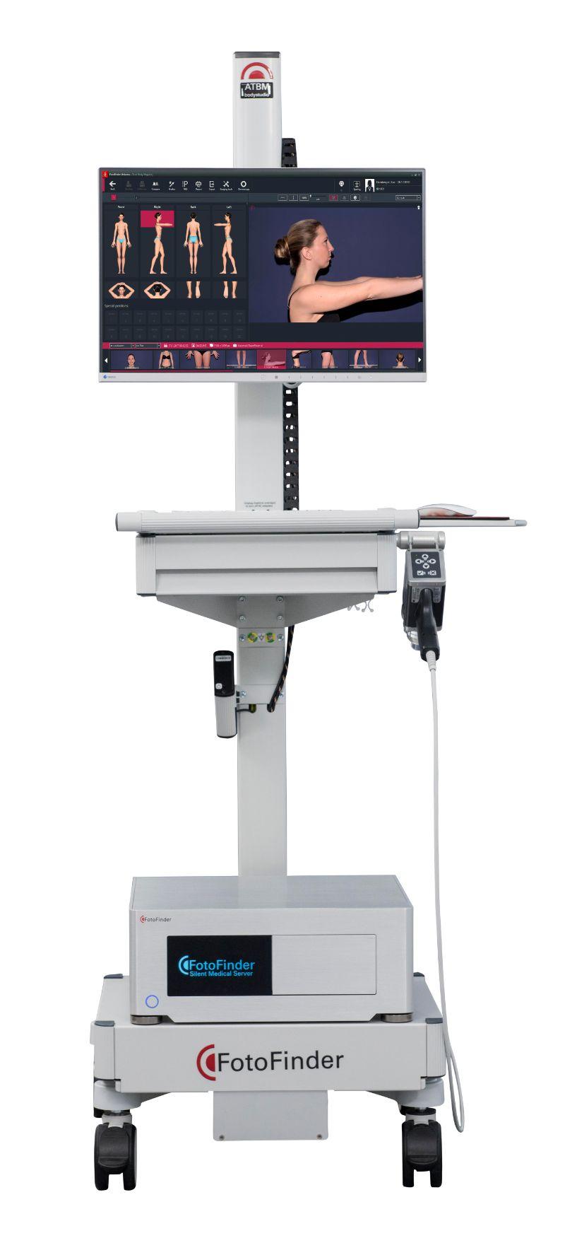 Fotofinder - Assist proactive management of your melanoma risk